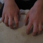 Handhaltung Kratzen